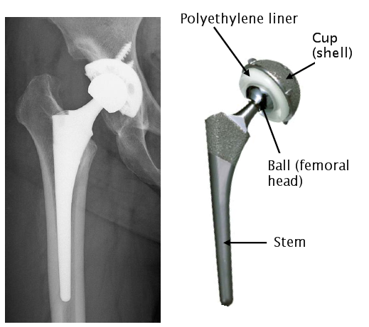 Long Life Artificial Hip Joint Reaches The Bedside