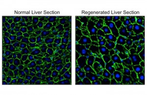 Visualization of nuclei (blue) and outlines (green) of hepatocytes. Hepatocytes in the regenerated liver (right) were significantly larger than those in the normal liver (left). © Yuichiro Miyaoka