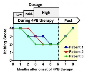 Itching scores in PFIC1 patients (children) during and after 4-phenylbutyrate (4PB) therapy.