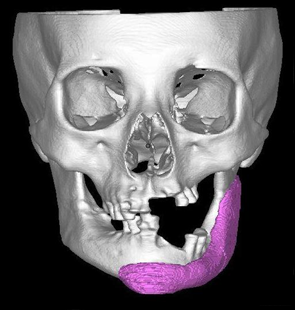 Artificial bone made to fit the affected area of the skull, created with a 3D printer