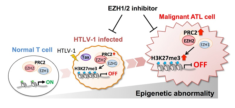 © 2016 Makoto Yamagishi.When T-cells are infected with HTLV-1, inappropriate histone methylation is carried out by the histone methylation enzymes EZH1/2. This epigenetic abnormality increases in extent and scope with the malignant transformation of T cells.