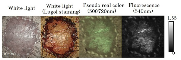 © 2016 Haruna Onoyama.The tumor lesion was difficult to detect by white light imaging (left). Just 10 min after spraying probe, the tumor lesion was clearly and specifically visualized and fluorescence-positive site matched well with the lugol voiding lesions (right). Lugol staining is useful for identifying ESCCs, because tumor lesion was unstained. However, discomfort has frequently been reported after lugol staining. On the other hand, probe is low stimulation and patients could receive painless examination.