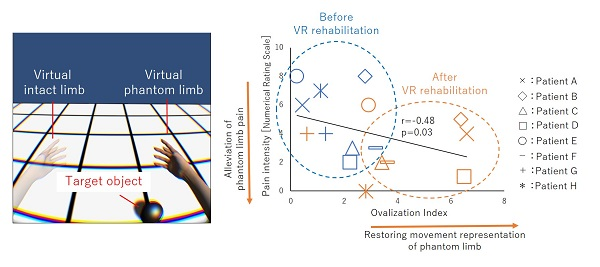 © 2016 Michihiro Osumi.By undergoing the rehabilitation exercise of moving their virtual phantom limb and touching the target object in the picture, patients not only saw their movement representations improve, but their phantom limb pain also abate as a result of the improvement.
