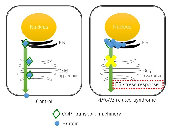 © 2016 Kosuke Izumi.ARCN1 is a component of the COPI protein complex, which controls intracellular transport. In ARCN1-related syndrome, mutations in the ARCN1 gene create disruption in intracellular transport, and proteins that are not properly modified accumulate in the cells causing stress on the endoplasmic reticulum (ER). Collagen, also transported outside the cell by the COPI protein complex, similarly builds up in the cell. As a result, collagen secretion is reduced and those affected develop skeletal symptoms such as a small jaw and short stature.