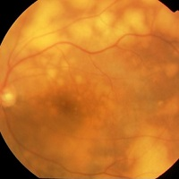 New treatment suppresses relapse of eye lymphoma in brain