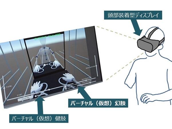 幻肢痛患者さんがバーチャルリアリティー(仮想現実)治療を受けているイメージ図