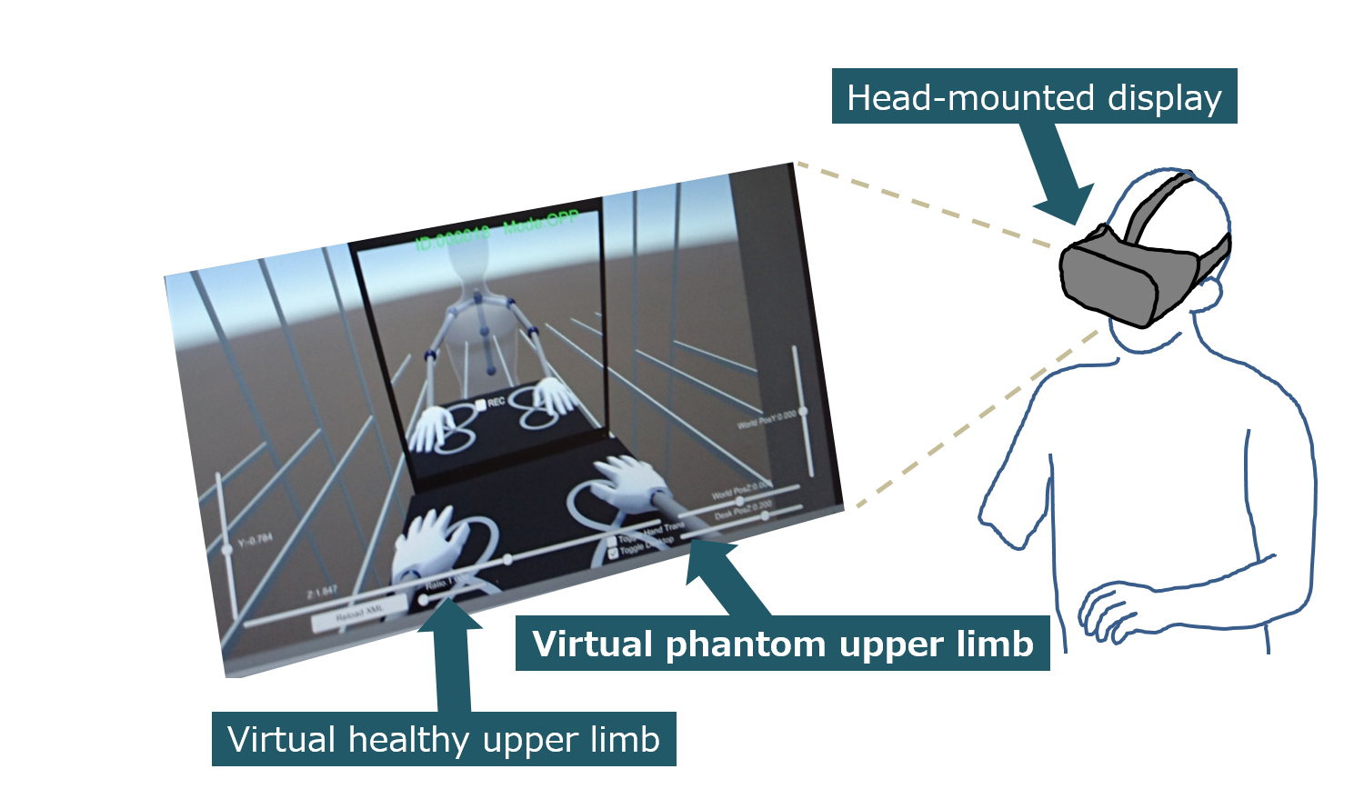 Neurorehabilitation with a virtual reality system